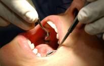 Dantų priežiūros kaina Airijos vaikams kainuos iki 41,1 mln. Eur per metus